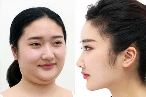 韩国芙莱思整形医院V脸吸脂轮廓术案例