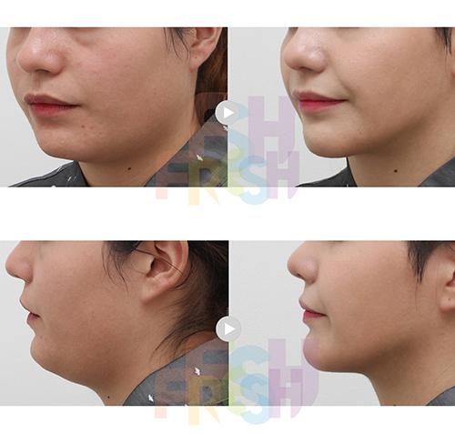 韩国芙莱思整形医院V脸吸脂轮廓术