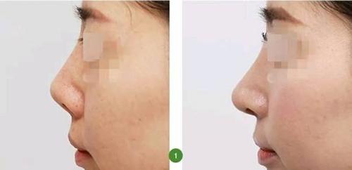 鼻子做了四次能修复吗