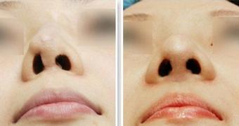 鼻子做过9次还能修复吗