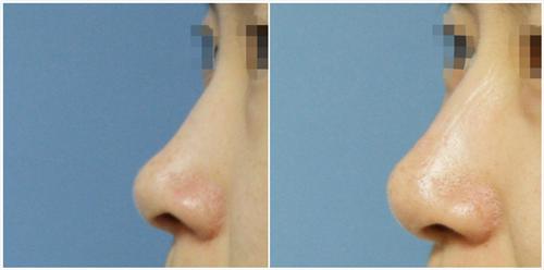 韩国耶斯整形外科黄泳重院长鼻修复案例图