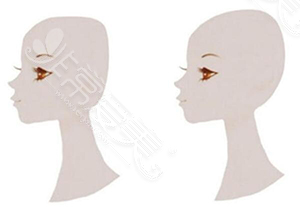 扁平后脑勺与较圆后脑勺对比