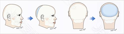 手术方式过程图示