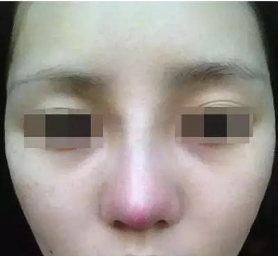 隆鼻鼻尖发红现象