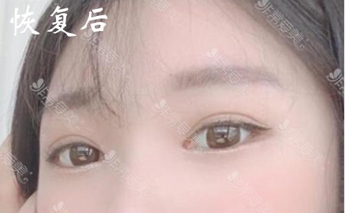 韩国laforet整形眼综合真实恢复期图片