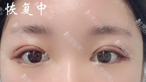 韩国laforet整形双眼皮恢复过程图