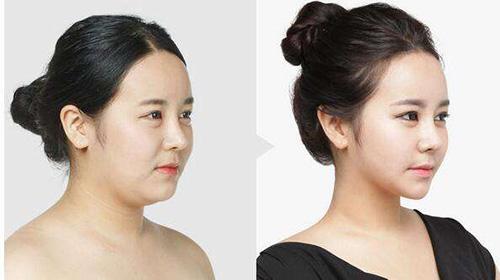 面部瘦脸手术对比案例