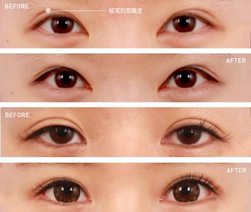 郑宰昊双眼皮修复案例图