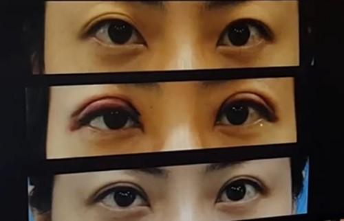 iwant整形不对称双眼皮修复图
