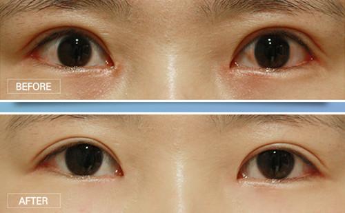 韩国righthand整形眼修复真人案例