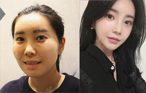 韩国菲斯莱茵整形外科颧骨固定用的是什么