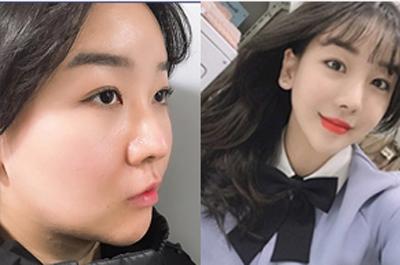 韩国玉芭整形医院鼻综合案例.png