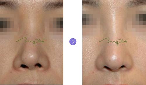韩国miplus整形外科鼻头整形好吗