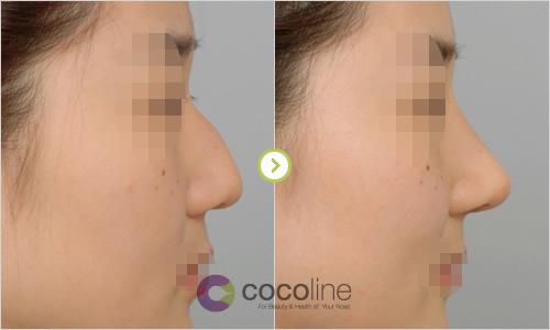 韩国cocoline整形外科驼峰鼻矫正案例