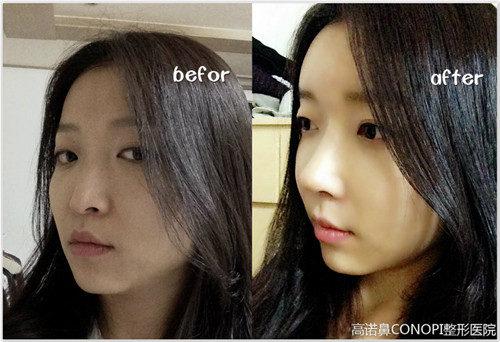 韩国高诺鼻肋软骨隆鼻前后对比图