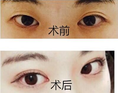 韩国本爱整形医院双眼皮案例