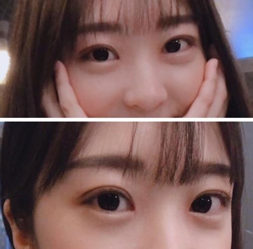 韩国蜡笔眼整形术后效果