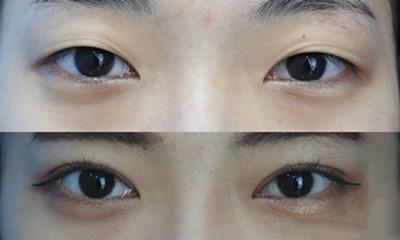 韩国纯真整形外科医院双眼皮手术前后对比