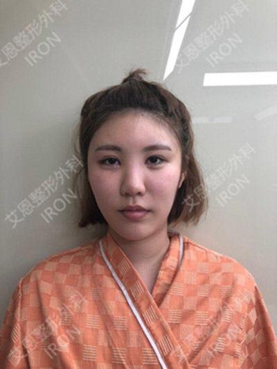 韩国艾恩隆鼻案例图