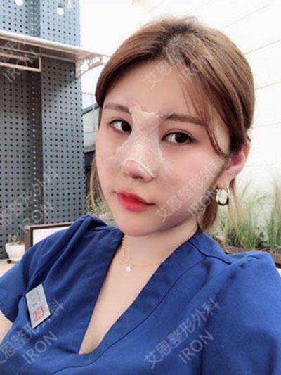 韩国艾恩整形医院隆鼻案例