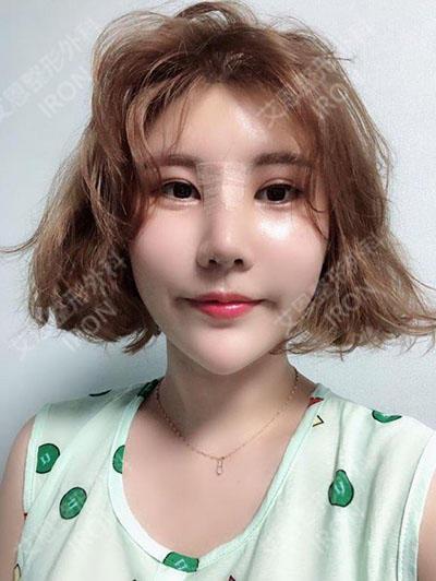 韩国艾恩医院隆鼻照片
