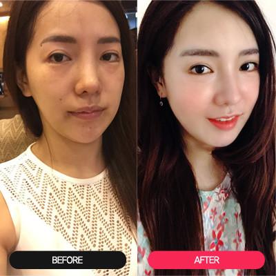 韩国全脸填充对比