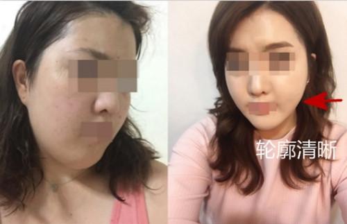 韩国劳波儿下颌缘吸脂真人案例