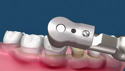 洗牙会造成牙齿松动吗