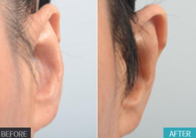 普罗菲耳整形外科贴发耳治疗案例
