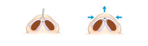 艾恩鼻小柱延长方法图