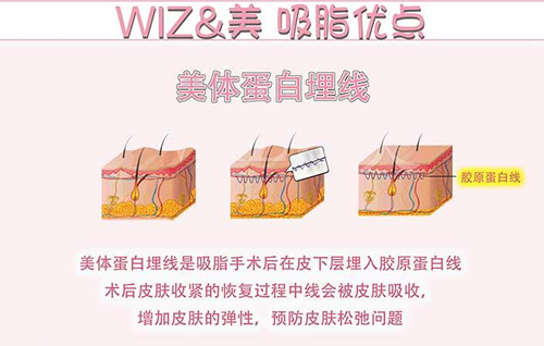 韩国WIZ&美整形外科吸脂优势分析
