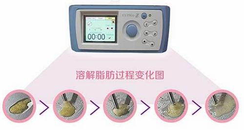 韩国WIZ&美整形外科吸脂仪器科普