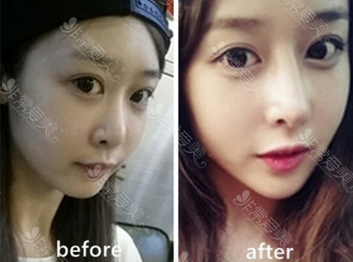 韩国WILL整形医院鼻修复案例