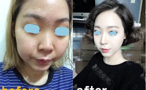 韩国高诺鼻整形外科鼻修复案例