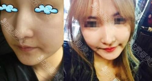 韩国高诺鼻整形外科鼻修复前后图