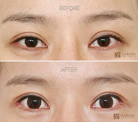 韩国整形医院双眼皮修复案例对比
