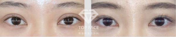 双眼皮修复手术案例图