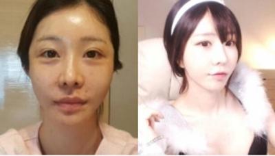 韩国维摩整形医院全脸脂肪填充前后照片