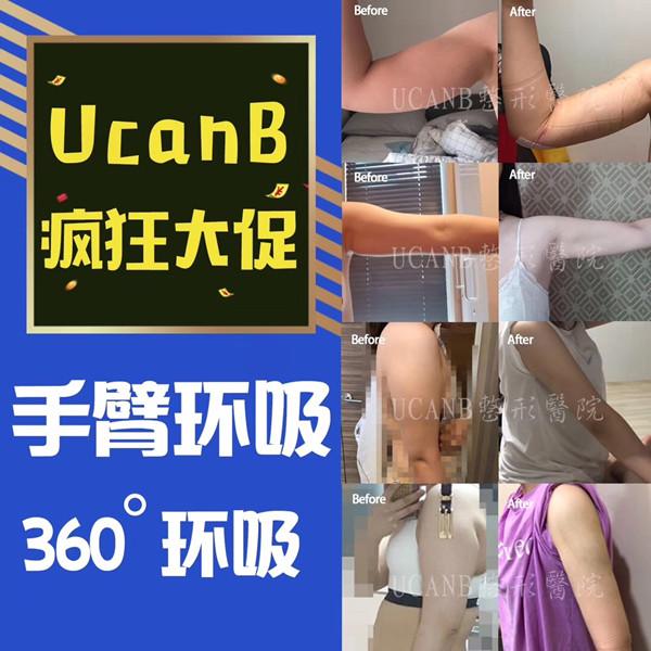 韩国Ucanb整形外科胳膊吸脂怎么样