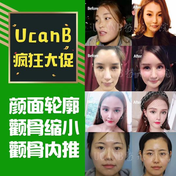 韩国Ucanb整形外科轮廓手术效果好吗
