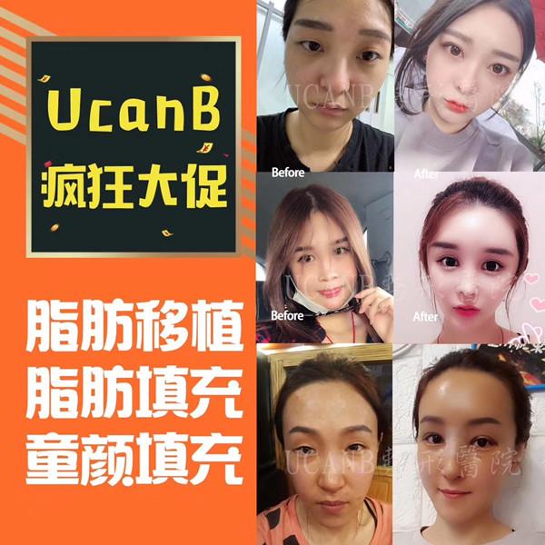 韩国Ucanb整形外科脂肪填充优惠多少?