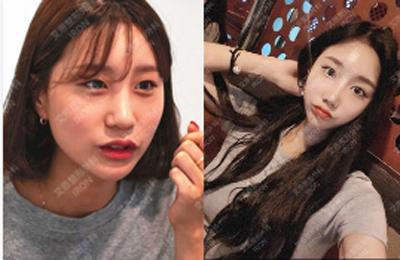 韩国艾恩医院埋线双眼皮案例