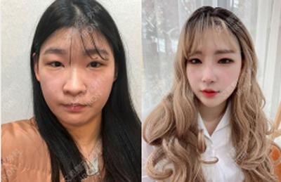韩国艾恩医院双眼皮隆鼻案例
