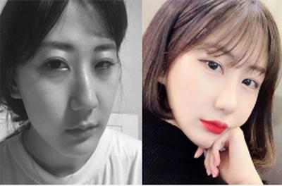韩国Deramline整形外科大小眼矫正手术案例