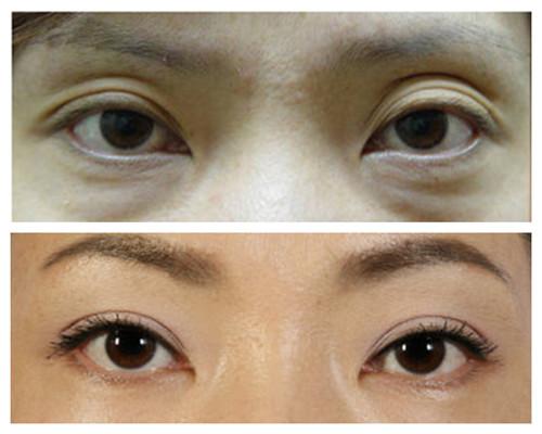 韩国BIO整形外科修复大小、形状不对称双眼皮真人案例