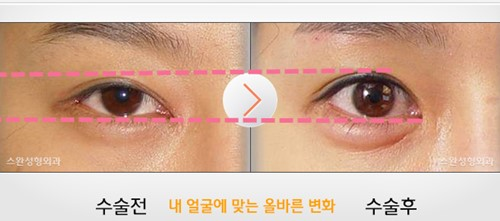 韩国天鹅swan整形医院黄成浩做双眼皮真人案例对比