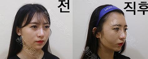 韩国raffine艾菲妮下颌缘吸脂
