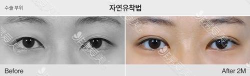 去韩国1毫米整形医院割双眼皮好吗