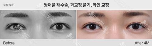 韩国双眼皮医院哪家好