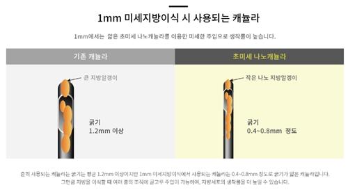 韩国1毫米整形医院在朋友圈很火吗